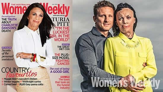 Turia Pitt,Inspirational story ,Quotes – Inspirational Quotes, Pictures and Motivational Thoughts